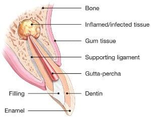 Endodontic Surgery Explained | American Association of